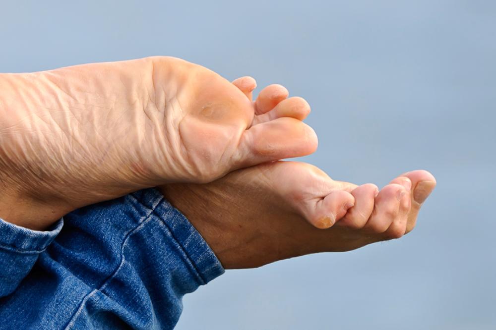 Was Sind Krallenzehen Und Wie Behandelt Man Sie? | Feetastic