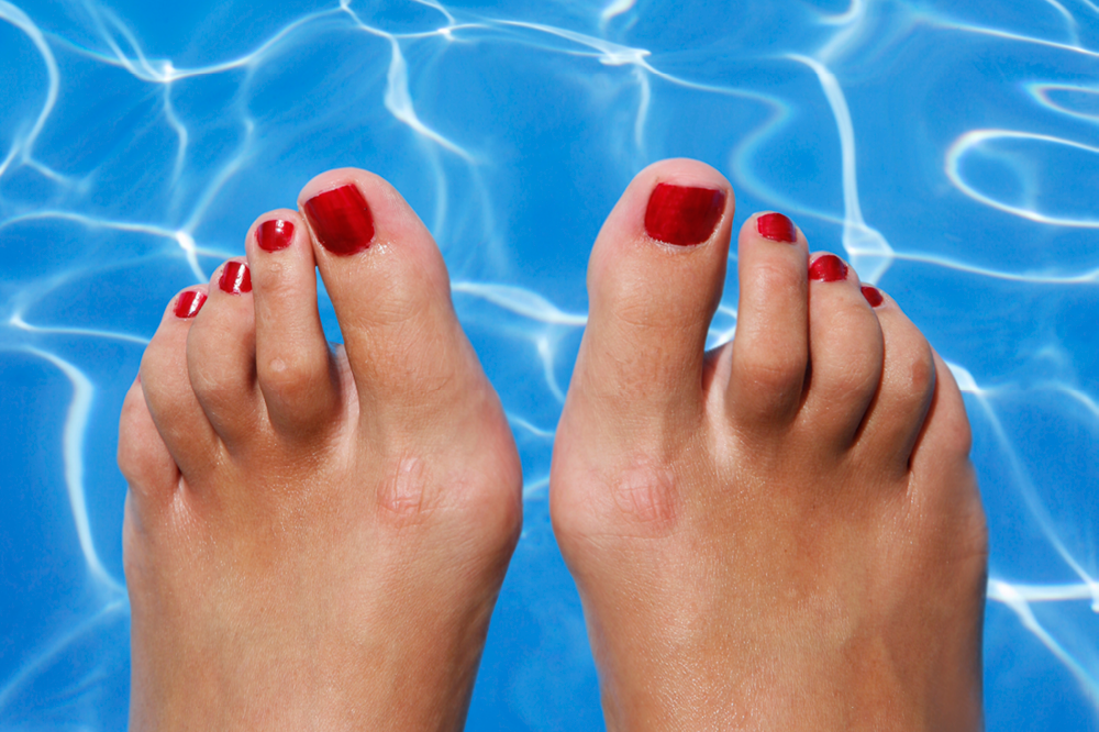 hammer toes symptoms - 1000×666