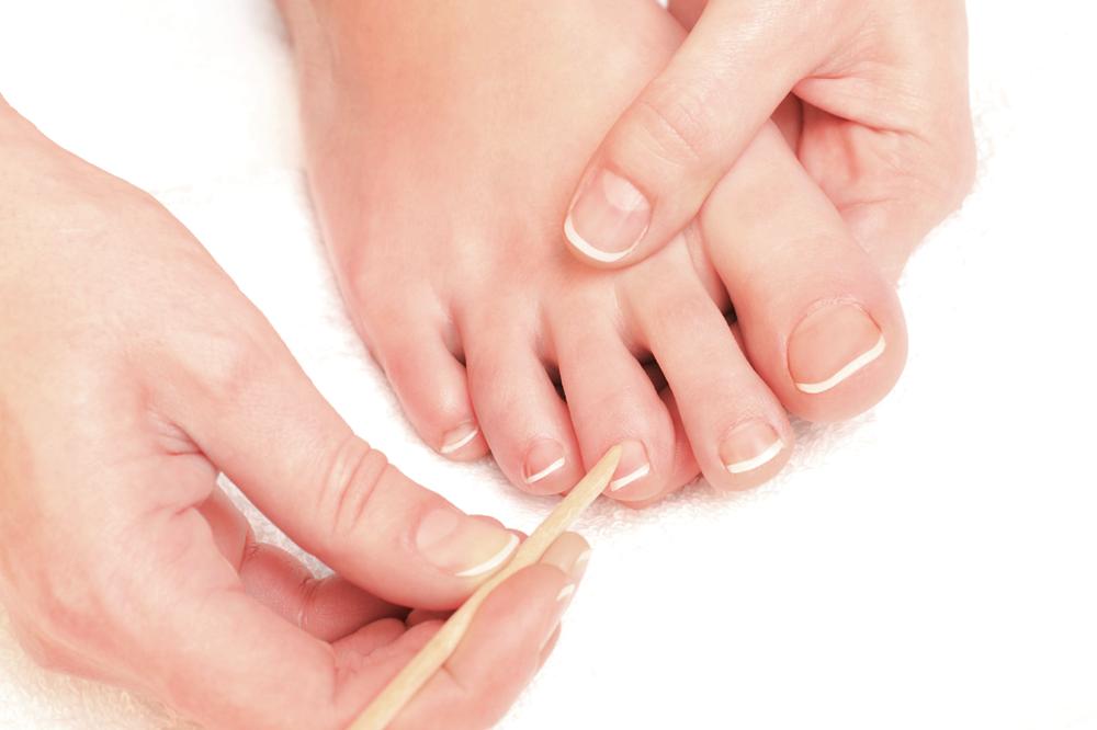 Fuu00dfnagel-Signale Was Ihre Fuu00dfnu00e4gel U00fcber Ihre Gesundheit Verraten | Feetastic