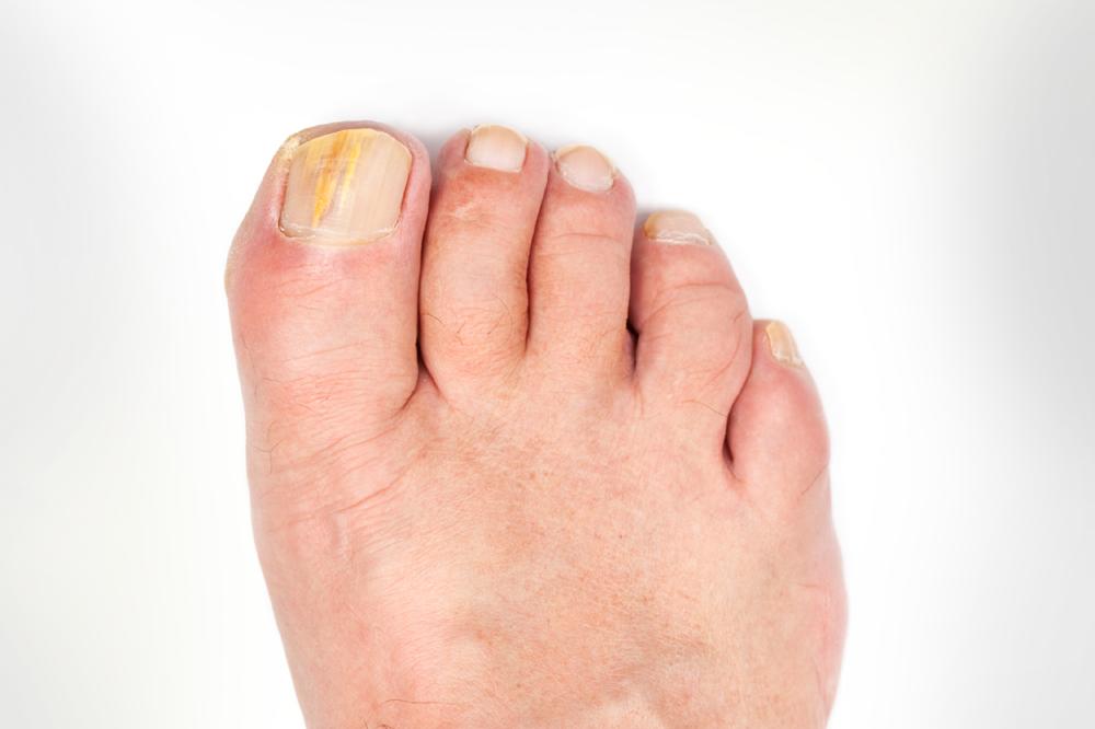 Verfärbter Fußnagel | Feetastic