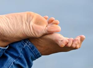 Bei Krallenzehen sind die Zehen oft so stark gekrümmt, dass Betroffene keinen Kontakt mehr zum Boden haben. Dabei kann es sich zum Beispiel um eine Begleiterscheinung des Spreizfußes handeln.
