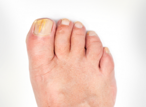 Verfärbte Fußnägel