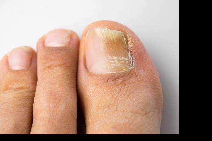 Brüchige Fußnägel
