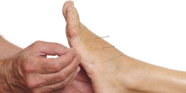 Akupunkturpunkte