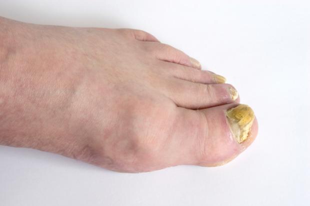 Nagelpilz Erkennen Und Richtig Behandeln | Feetastic